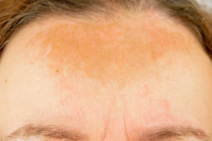 A patient with melasma on her face.