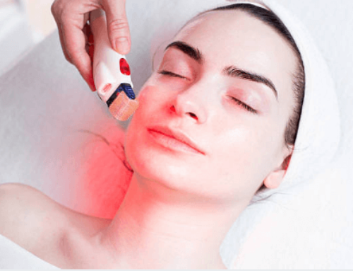 Radiofrequency Microneedling for Acne Scars