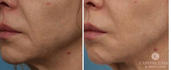 Ultherapy® Chevy Chase, MD | Non-Invasive Skin Tightening DC